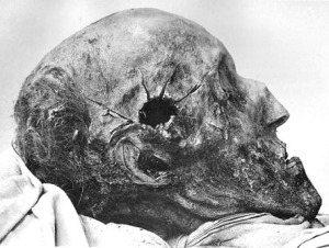The right side of Charles XII's skull, showing what appears to be a significantly smaller entrance wound.