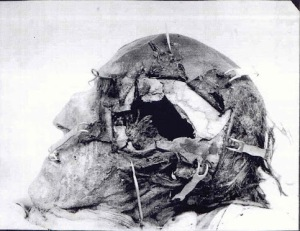 Detail of Charles XII's skull with the mummified scalp peeled back to reveal the full extent of the damage caused by the projectile that killed him. 1917 autopsy photograph.