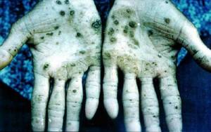 Signs of poisoning on the hands of an arsenic miner.