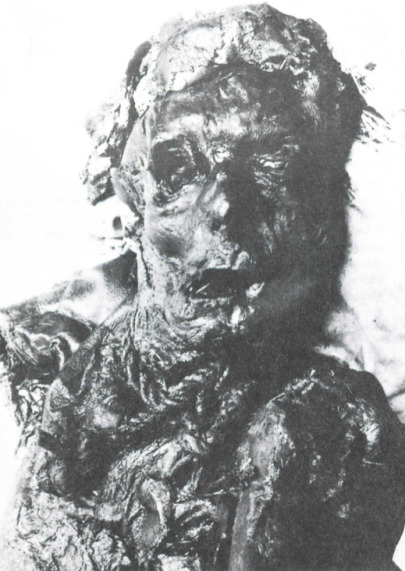 Borremose Man, a Danish bog body dating to around 700 B.C., was found with the halter used to strangle him still around his neck.