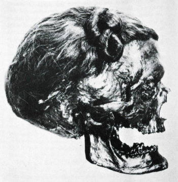 The head of Osterby Man, showing the Suebian Knot tied into his hair – a sign of his high status.