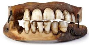 Human teeth implanted into C19th dental plate