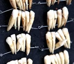 sol;diers teeth